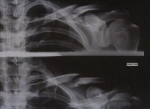 clavicule cassée et calcifiée à 2 mois
