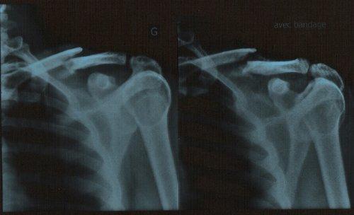 Fracture de la clavicule for Alarme de piscine linxor jb p 03